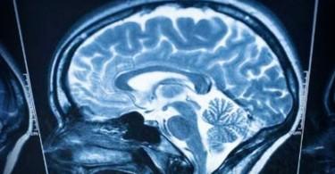 come-cerebros-62543